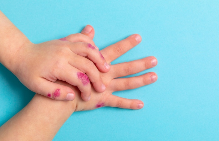 Dermatitis In Children, Those Who Suffer The Most