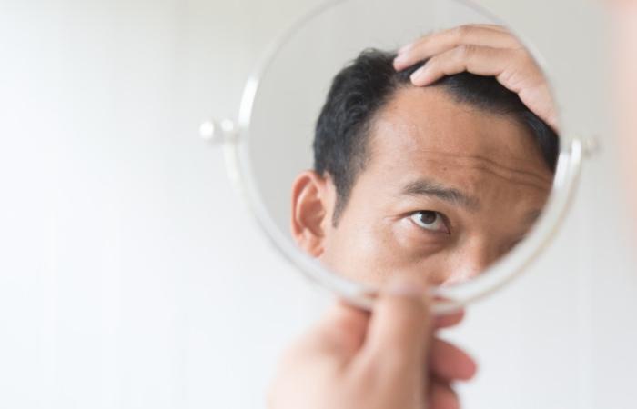Fibrosing Alopecia, A Mystery To Be Solved