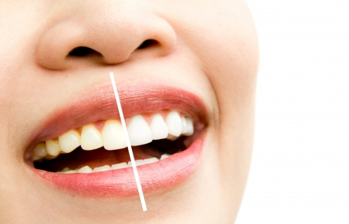 In-Office Or Photoactivation Teeth Whitening