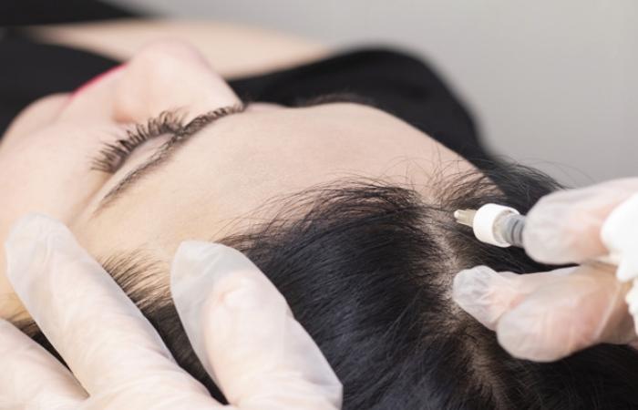 Treatment Of Female Alopecia