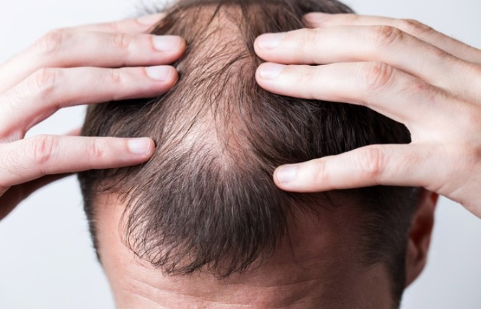 What Are The Main Treatments For Hair Loss_