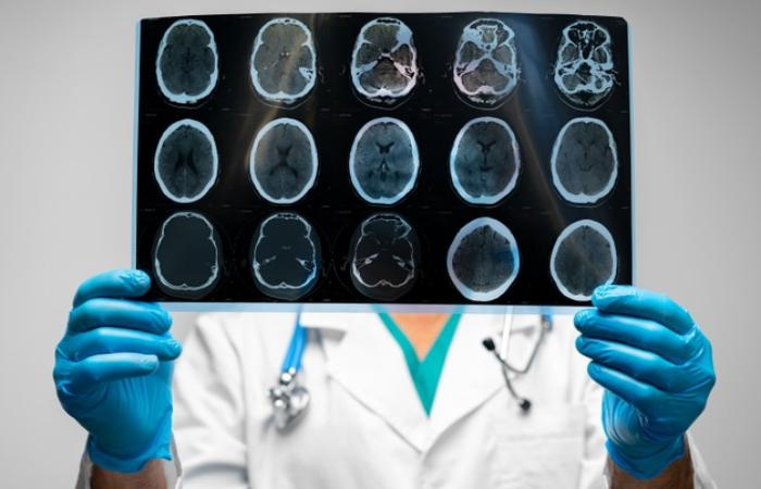 Brain And Skull Injuries car accident