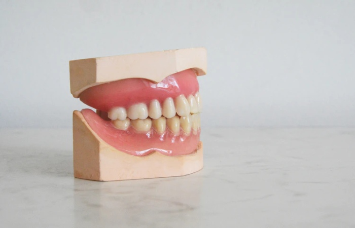 Dental Implants Can Become Discolored