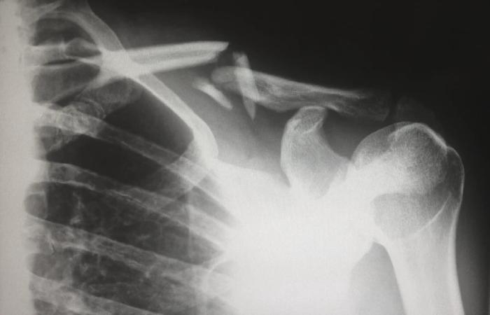 Fractured Bones car accident