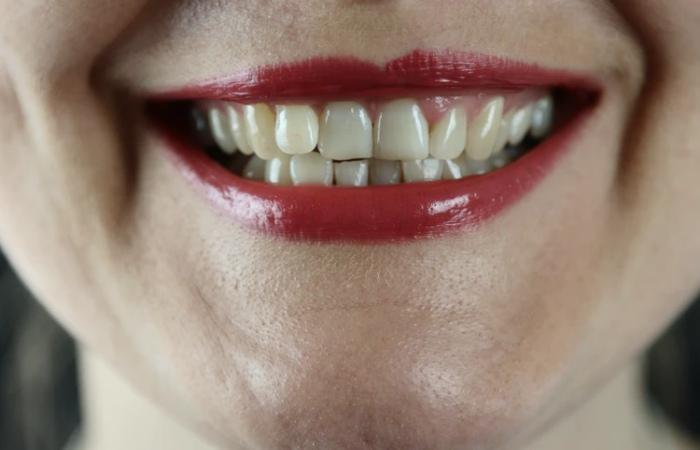Having A Dental Implant